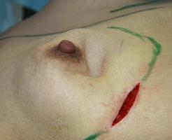 美容整形で体にシリコン入れるのを失敗したらどうなるか?血の汗が・・・