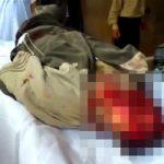 グロ動画|イラクの遺体安置所に運ばれてきた顔だけ特定できない死体