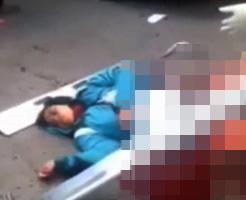 グロ動画|女の子が事故で倒れているおぞましい光景に声を失ってしまった・・・