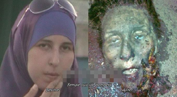 グロ画像|自爆テロで死亡した女性犯人の生前と死亡時の写真集