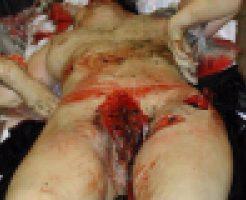 レイプされて無残に殺された女の子達 死体がバラバラ過ぎて見るの辛い・・・