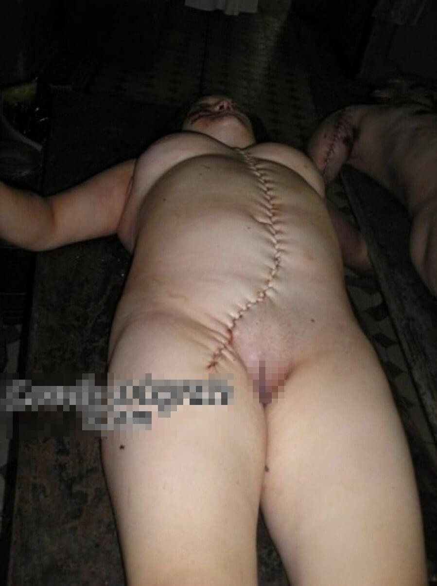 事故で死んでしまった女の子 体の損傷少ないから取りあえず解剖して臓器取り出し