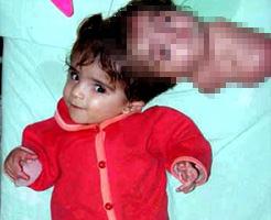 閲覧注意!双子の片割れと頭を共有している奇形児が可愛いけどやっぱり怖い…