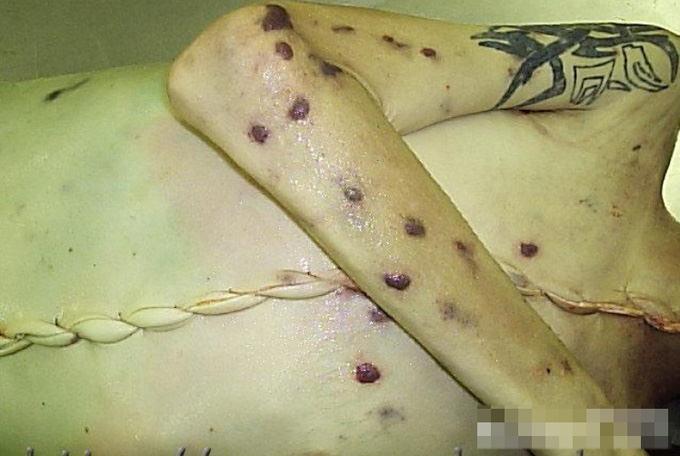 グロ画像|閲覧注意!エイズで死亡した人の死体画像まとめてみました・・・