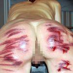 エログロ画像|おっぱいやお尻が痛めつけられる様子に興奮するアナタへ・・・