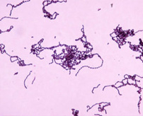 【閲覧注意】東京だけでもなんと60人!「人食いバクテリア」に感染するとこうなる