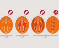 【閲覧注意】女児の性器を切除するFGM(女性器切除)の実際の様子、悲鳴が痛々しい…