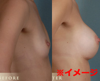 【閲覧注意】バストアップ手術中に死亡した女性を解剖、胸の中はこうなってる