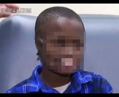チンパンジーの攻撃によって顔面をほぼほぼ破壊されてしまった少年