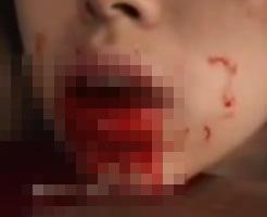 【閲覧注意】これぞエログロ、手に針を刺して固定、舌を切って2枚にするSM拷問スプリットタン
