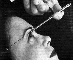 【ロボトミー】目頭から針を刺して脳をぐちゃぐちゃ…「悪魔の手術」と呼ばれた手術