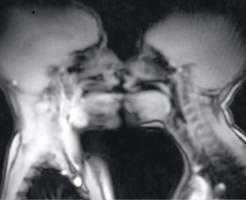 【エロ?】お楽しみに中のところをMRIで失礼しますw性行為をMRIで観察してみた