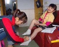【閲覧注意】女性は足が小さいほうが美しい…纏足(てんそく)で変形してしまった足ギャラリー