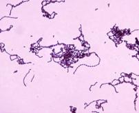 東京だけでもなんと60人!「人食いバクテリア」に感染するとこうなる