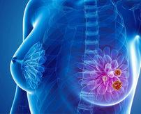 【閲覧注意】定期的に検診受けましょう…乳がんを放置した女性、とんでもない状態になる