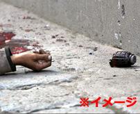 【グロ】車内で手榴弾が爆発しらどうなるか身をもって体験した男性がこちら...