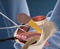 男→女に性転換、チンコ切除してマンコ再現する手術映像