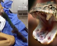 細胞が死んでいく...毒蛇に噛まれた少女の足が深刻な壊死状態に