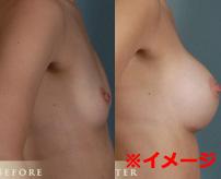 バストアップ手術中に死亡した女性を解剖、胸の中はこうなってる