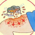 コマ??1時間に2~3cm壊死して最悪死亡 人食いバクテリアに感染した人たち