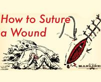 ~登山家の心得~ 滑落してできた血腫を自己切開で取り除く
