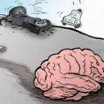 頭を強く打って死亡してしまった男性、頭蓋骨が砕けて脳が飛び出てしまう…
