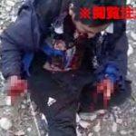 持っていた手榴弾が爆発して手がグッチャグチャになってしまった男性がマジでグロい…