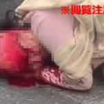 頭皮が全部剥がれて頭蓋骨が丸見えに…タンクローリーに轢かれてしまった女性がコチラ