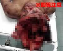 あれ、頭の中ってこんなにスカスカなの!?ブラジルギャングの抗争で病院に運ばれてきた男の頭がヤバイことに…