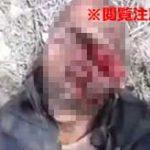 この状態でまだ生きているのが不思議…銃の誤射で顔面に穴が開いてしまった男性…