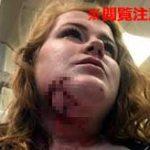 ピットブルにアゴを噛まれた女性、歯形の傷口から千切れた肉が垂れてかなりグロいことに…