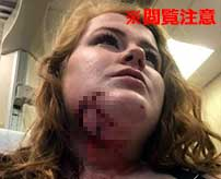 ピットブルに襲われてしまった女性のグロ画像。 情報元によると、襲われてしまった女性は海外のグロサイトのユーザーとのことで、 いつも自分が利用しているサイトに自分の画像が掲載されることになってしまった…(`・ω・´) 噛まれた傷口は歯形がくっきりと残っていて、そこから垂れ下がっている皮膚がかなりグロテスクです…