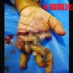 フィリピンの肉挽き工場で起きてしまった悲惨な事故の画像。 親と一緒に工場に訪れていたまだ幼い子供が、目を離した隙に肉挽き機の中に手を突っ込んでしまう… すぐに病院に搬送されましたが子供の指はグッチャグチャに切り裂かれていて、 最終的に親指と小指以外の3本の指を切断してしまう結果となってしまいました…(´・ω・`)