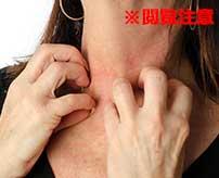 偶然遭遇した薬中女が首を掻きむしりまくって肉が丸見えなんだが…