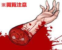 マチェーテで切断されるまで、何度も自分の腕を差し出さなければならない恐怖の拷問…