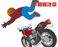 バイクで事故ってしまったバイカー、顔面がワイルドになってしまった…