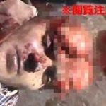 【閲覧注意】銃で頭を撃たれた男性、額が陥没して中身が丸見えに…