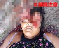 ブラジルのスラム街で銃殺された女性の頭がグチャグチャに…