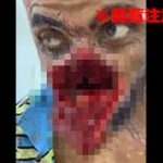 【閲覧注意】顔面を切り裂かれた男、鼻から下がベロッと捲れて丸見えに…