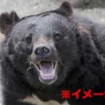 野生のクマに襲われて奇跡の生還を果たした男の顔面がヤバすぎた…