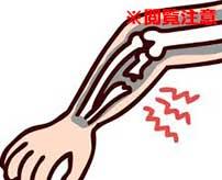 人間の腕がグニャッと折れ曲がってしまう衝撃的な瞬間がコチラ…